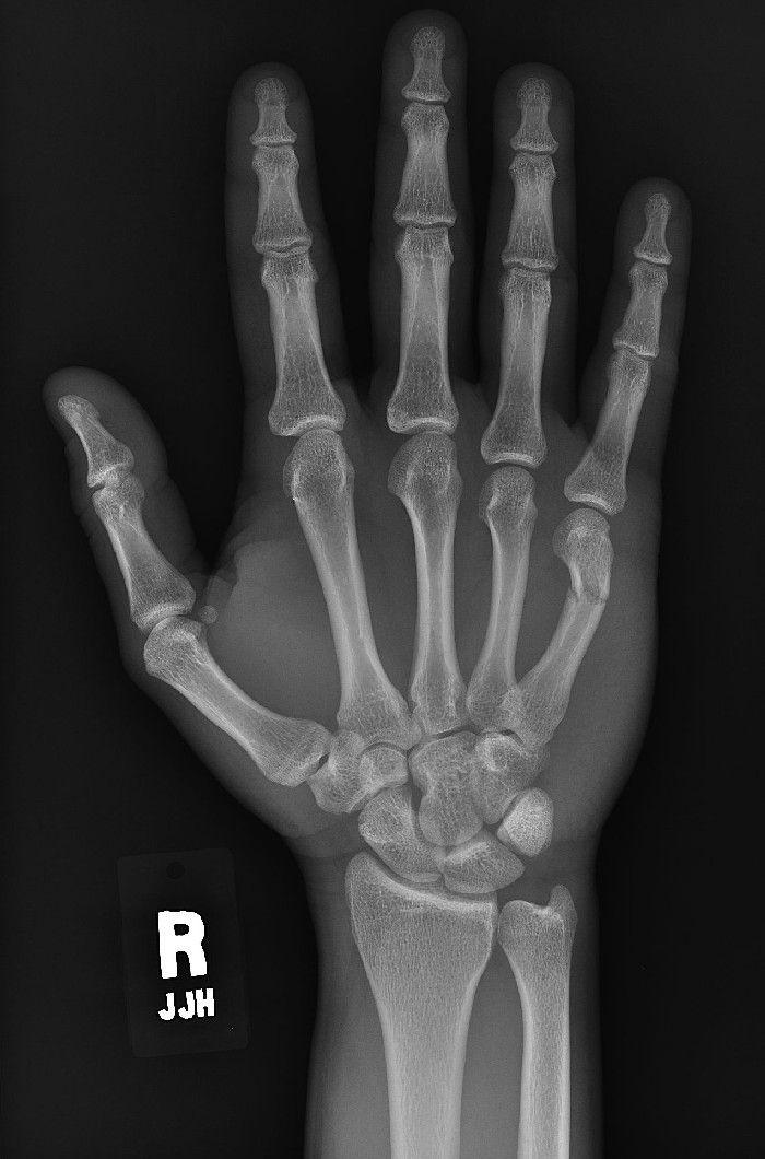 pediatric chest x ray tutorial