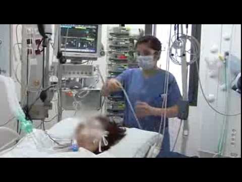servo i ventilator tutorial