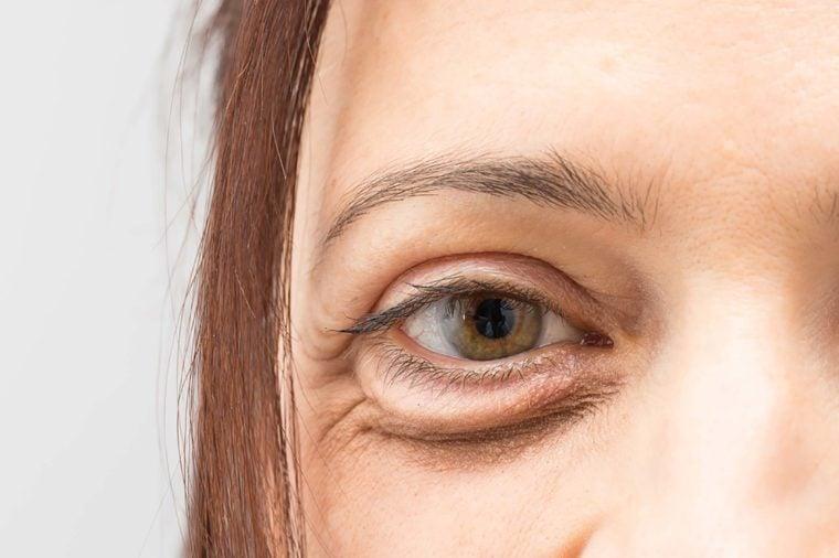 under eye concealer tutorial